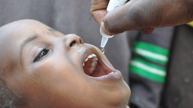 polio-vaccine-child